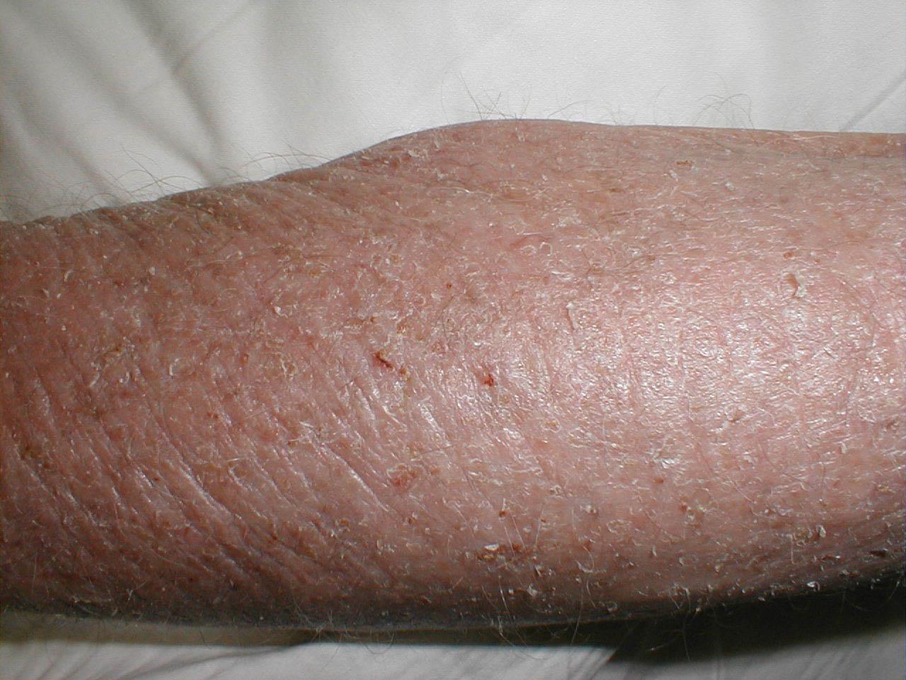 аллергия при беременности симптомы